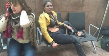 Two of the many people injured in the blast at the airport.