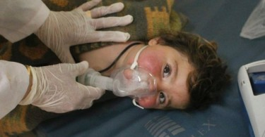 A doctor treating a child victim of the latest aerial bombing in Syria.